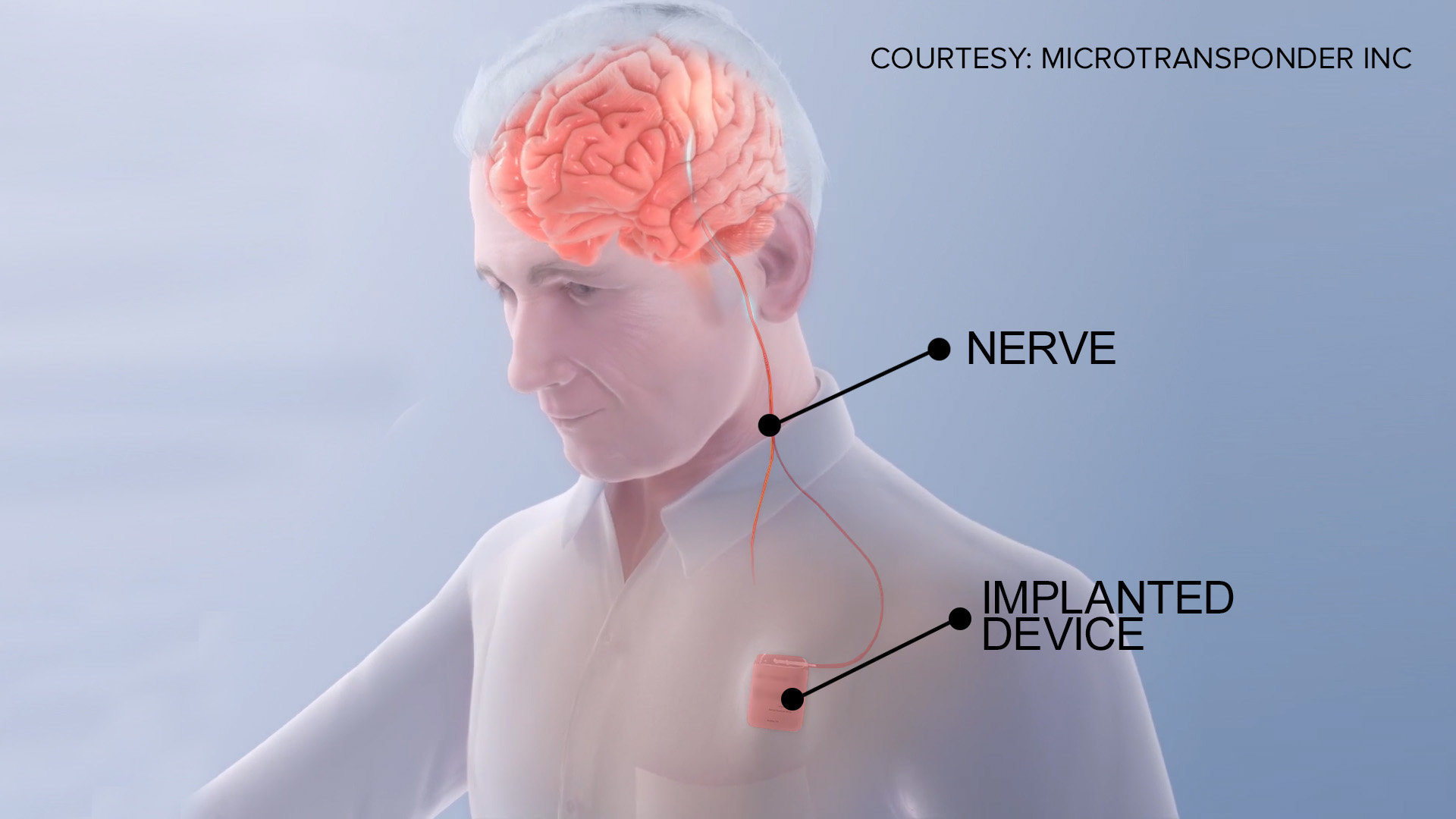 Имплант за закрепнување од мозочен удар